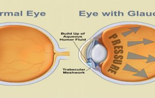 Diabetes Causes Eye Problems