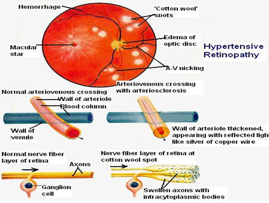 Symptoms of Hypertensive Retinopathy