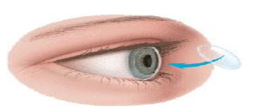 What is corneal transplantation