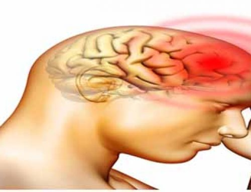 Complications after a brain hemorrhage